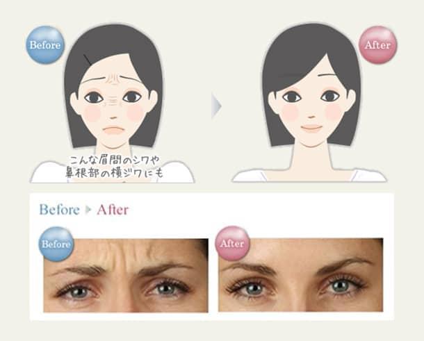眉間・鼻根部(シワ)若返りボトックスしわとり法の図