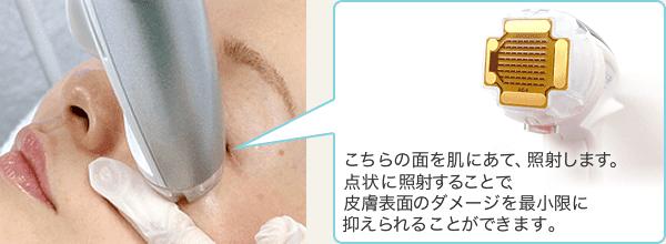こちらの面を肌にあて、照射します。点状に照射することで皮膚表層のダメージを最小限に抑えられることができます。