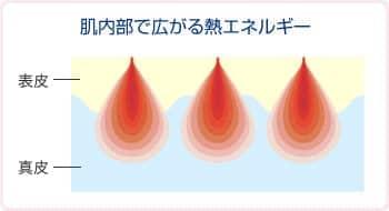 肌内部で広がる熱エネルギー・表皮・真皮