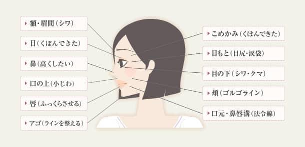 ヒアルロン酸の施術箇所の図