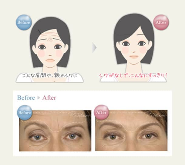 額・眉間(しわ)若返りヒアルロン酸注入法の図