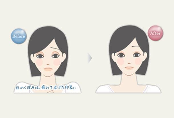 目のくぼみ 若返りヒアルロン酸注入法の図