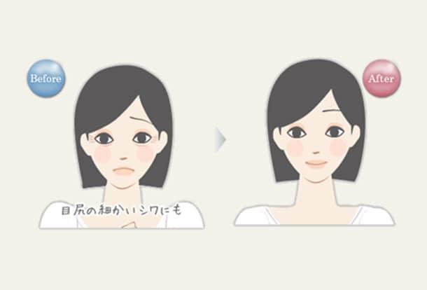 目もと 若返りヒアルロン酸注入の図