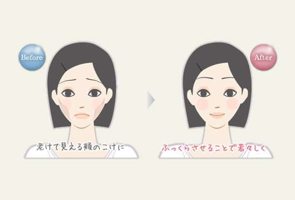 頬のこけ 若返りヒアルロン酸注入法の図