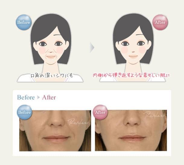 口元(口角)のしわ・鼻唇溝(法令線) 若返りヒアルロン酸注入法の図