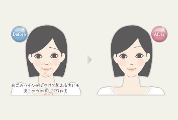 あごの老化(しわ・へこみ)・フェイスラインの弛み マリオネットラインの改善 若返り美人ヒアルロン酸注入の図
