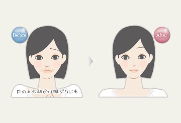 口の上の縦ジワ 若返りヒアルロン酸注入法の図