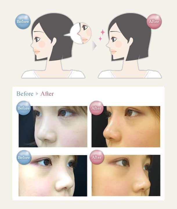 鼻 ヒアルロン酸注入法の図