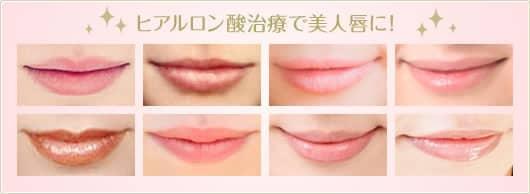 ヒアルロン酸治療で美人唇に!
