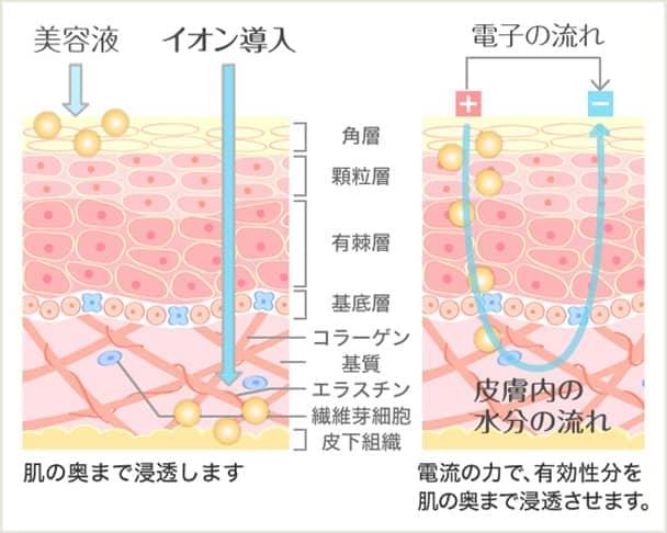 イオン導入の効果の図