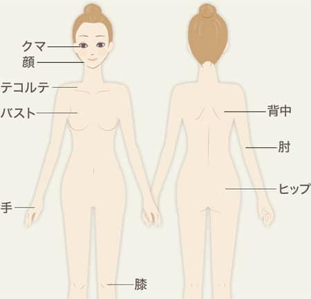 イオン導入の施術可能箇所の図