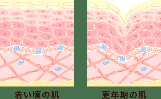 若い頃の肌 更年期の肌