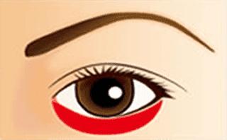 2. 皮膚のタルミ・脂肪を除去イメージ