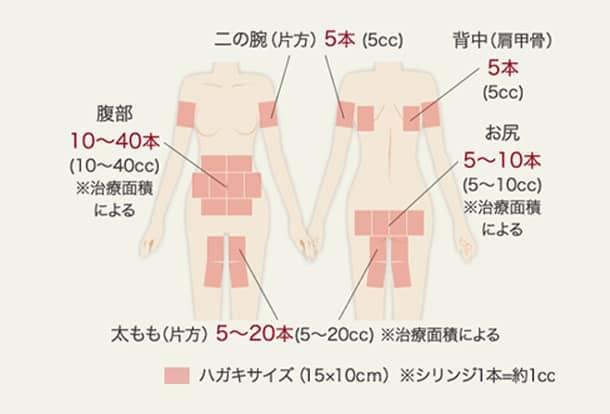 BNLS注射の施術可能箇所の図2