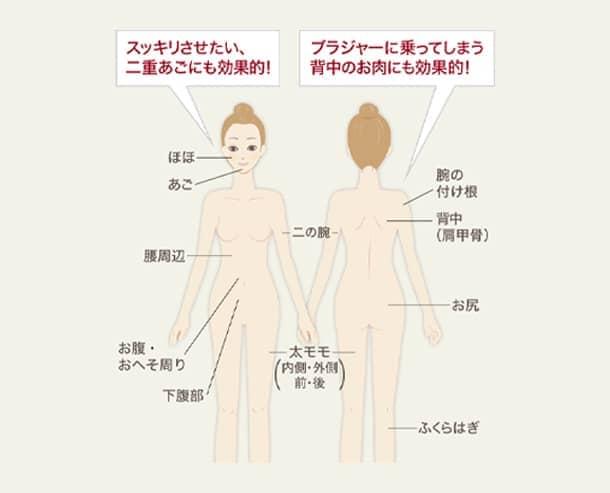 脂肪溶解注射(レシチン)の施術可能箇所の図