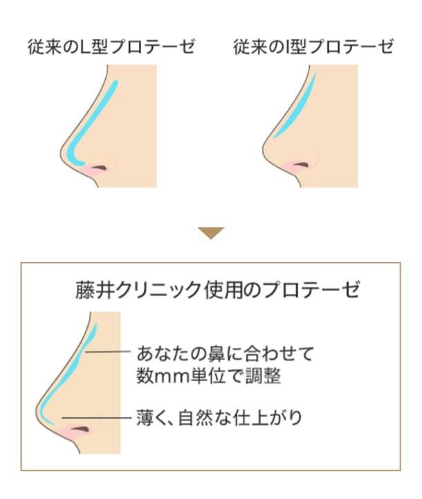 藤井クリニック使用のプロテーゼの図