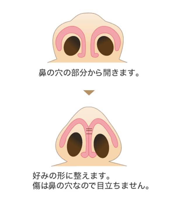 鼻尖修整施術内容の図