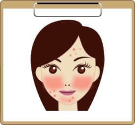 ニキビ・赤ら顔