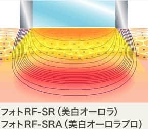 フォトRF-SR(美白オーロラ)・フォトRF-SRA(美白オーロラプロ)