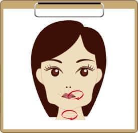 口の周りの小ジワが気になる方・首のしわが目立ってきた方の図