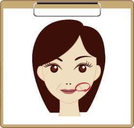 鼻の横のシワ(法令線)が目立ってきた方の図