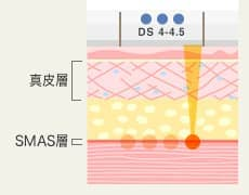 DS 4-4.5 真皮層・SMAS層