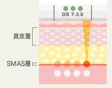 DS 7-3.0 真皮層・SMAS層