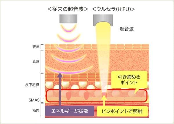 従来の超音波はエネルギーが拡散するのに対し、ウルセラ(HIFU)はピンポイントで照射する