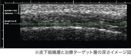皮下組織層と治療ターゲット層の深さイメージ図
