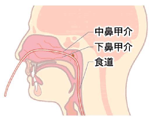 食道の病気・十二指腸の病気